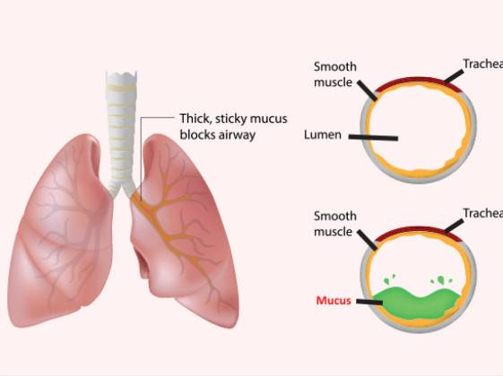 Discovery shows how mucus build-up, not infections, triggers cystic fibrosis lung damage